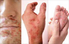 hand-foot-mouth-disease